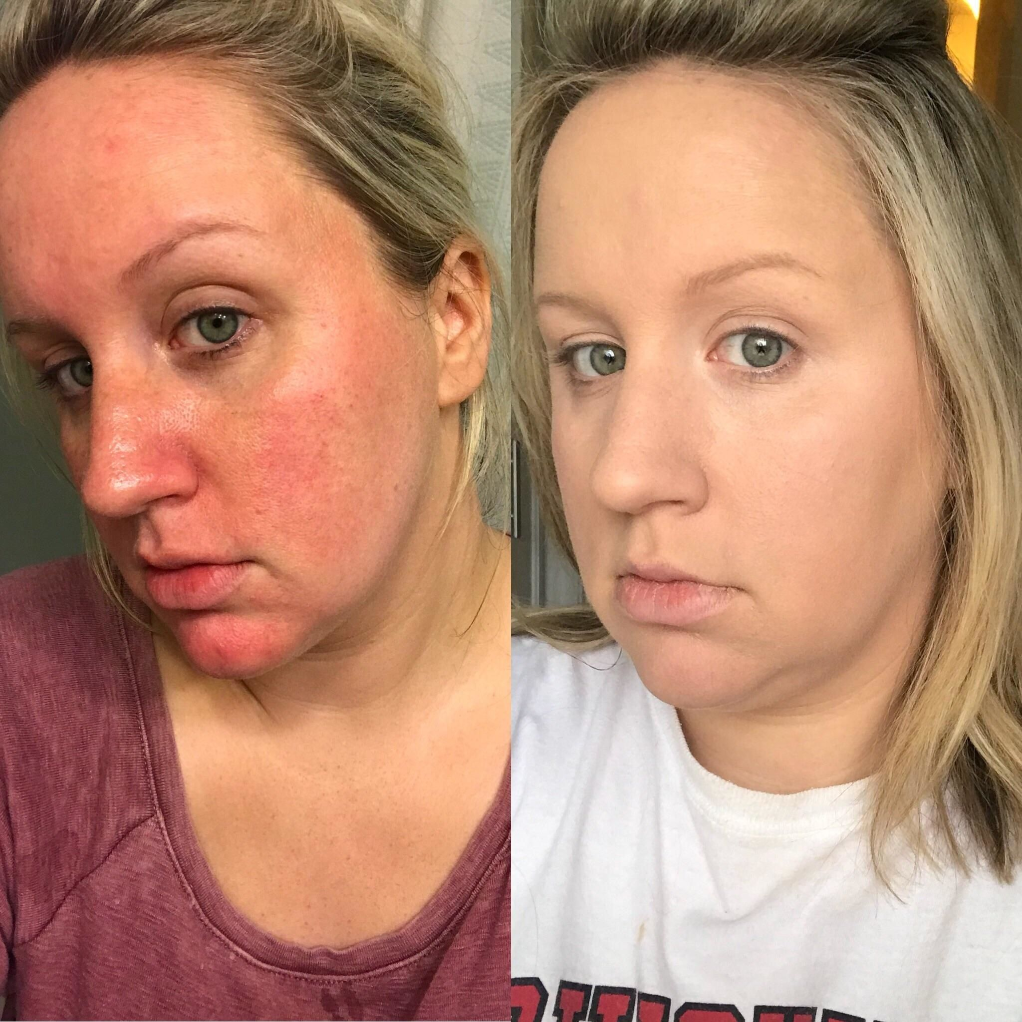 This Redditor Used It Cosmetics S Bye Bye Redness And The Before And After Photos Are Mind Blowing It Cosmetics Bye Bye Redness Bye Bye Redness Skin Care Redness