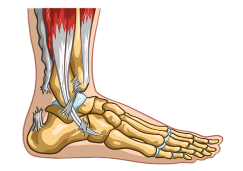 Pin by Sammie Valenze on School in 2020 | Achilles tendon ...