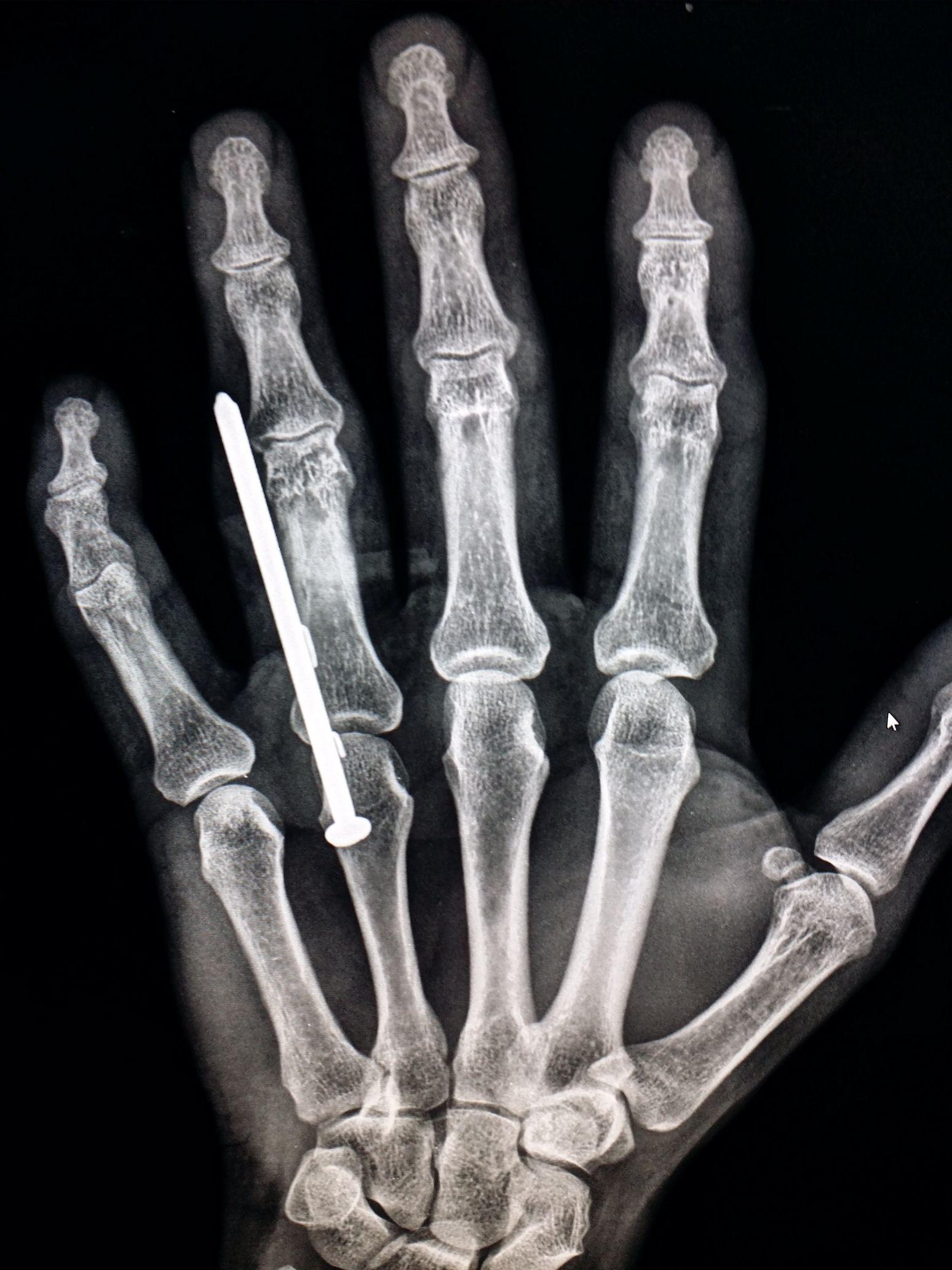 Xray of a #hand. #Nail #gun #accident. #trauma #radiologist ...