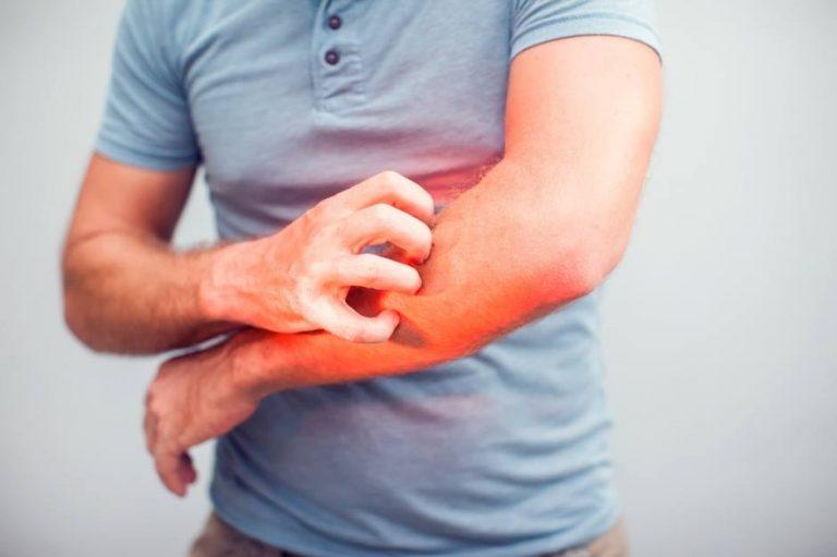 أفضل مبيد لقتل البق أماكن بيع مبيدات البق تعرف عليها 2 Skin Allergy Treatment Skin Allergies Common Skin Rashes