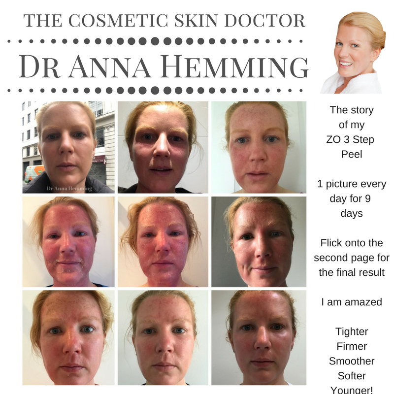 Totally In Love With My Skin After My Zo Skin Health 3 Step Peel I Think The Pictures Say 1000 Words Make Sure You T Skin Medical Skin Clinic Cosmetic Clinic