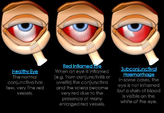 Pin on    Eye    Doctor