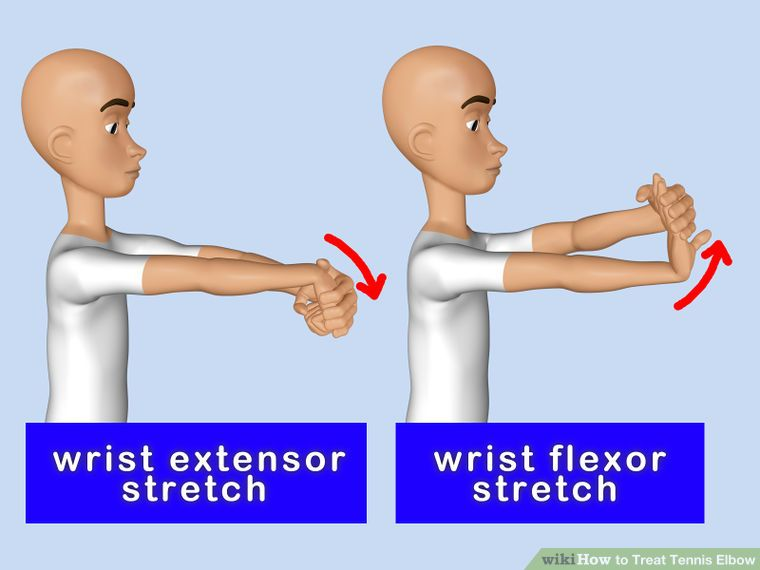Treat Tennis Elbow Tennis Elbow