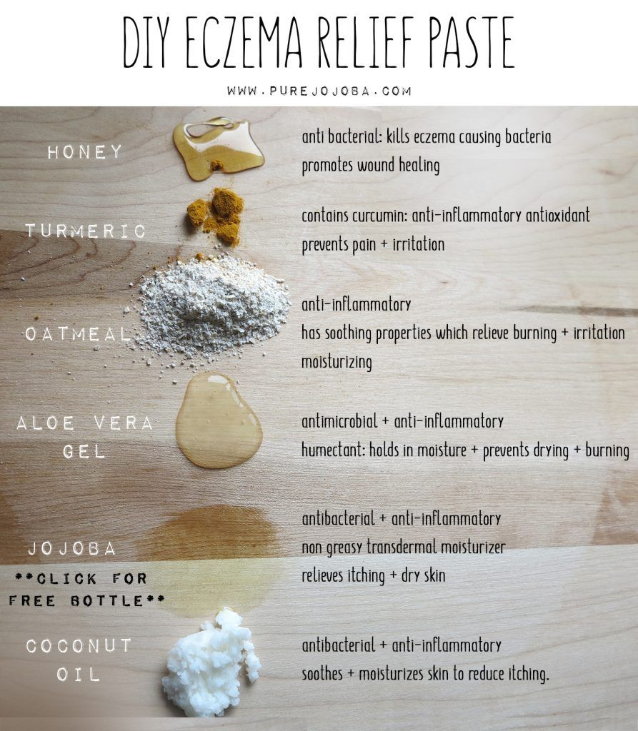 DIY: Eczema Relief Paste Eczema is a non contagious inflammatory skin disorder that can be acute or chronic. This skin condition causes your skin produce less oil and reduces the skin's ability to lock in moisture. This can cause dry, flaky, itchy, irritated skin which is very unpleasant to say the least. Here is a super simple + effective diy recipe for eczema and extremely dry skin.