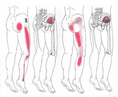 Glute Medius Trigger Point Fibromyalgie Nervenschmerzen Beinschmerzen