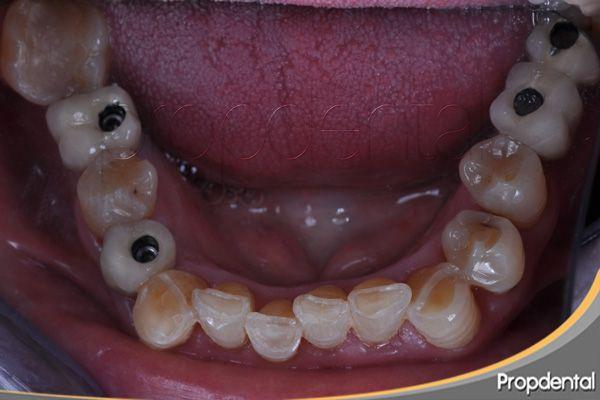 Pin En Odontologia