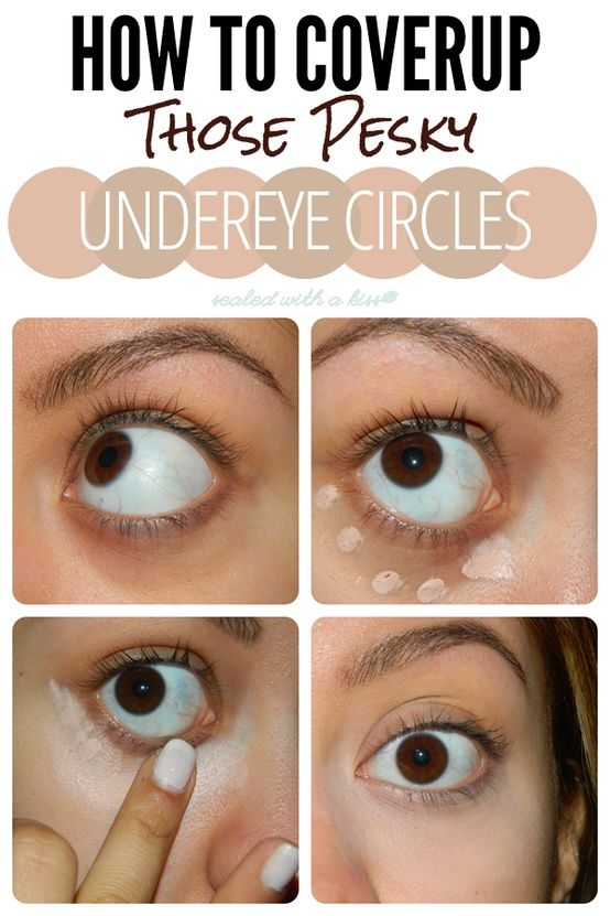 concealing undereye circles. though undereye circles are ...