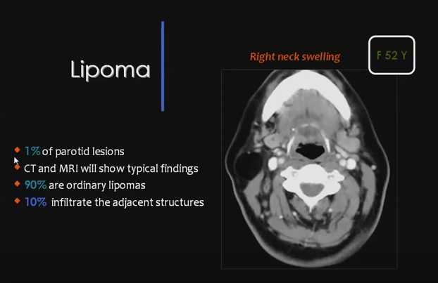 Lipoma Within The Parotid Gland Fat Density By Ct Fat Signal By