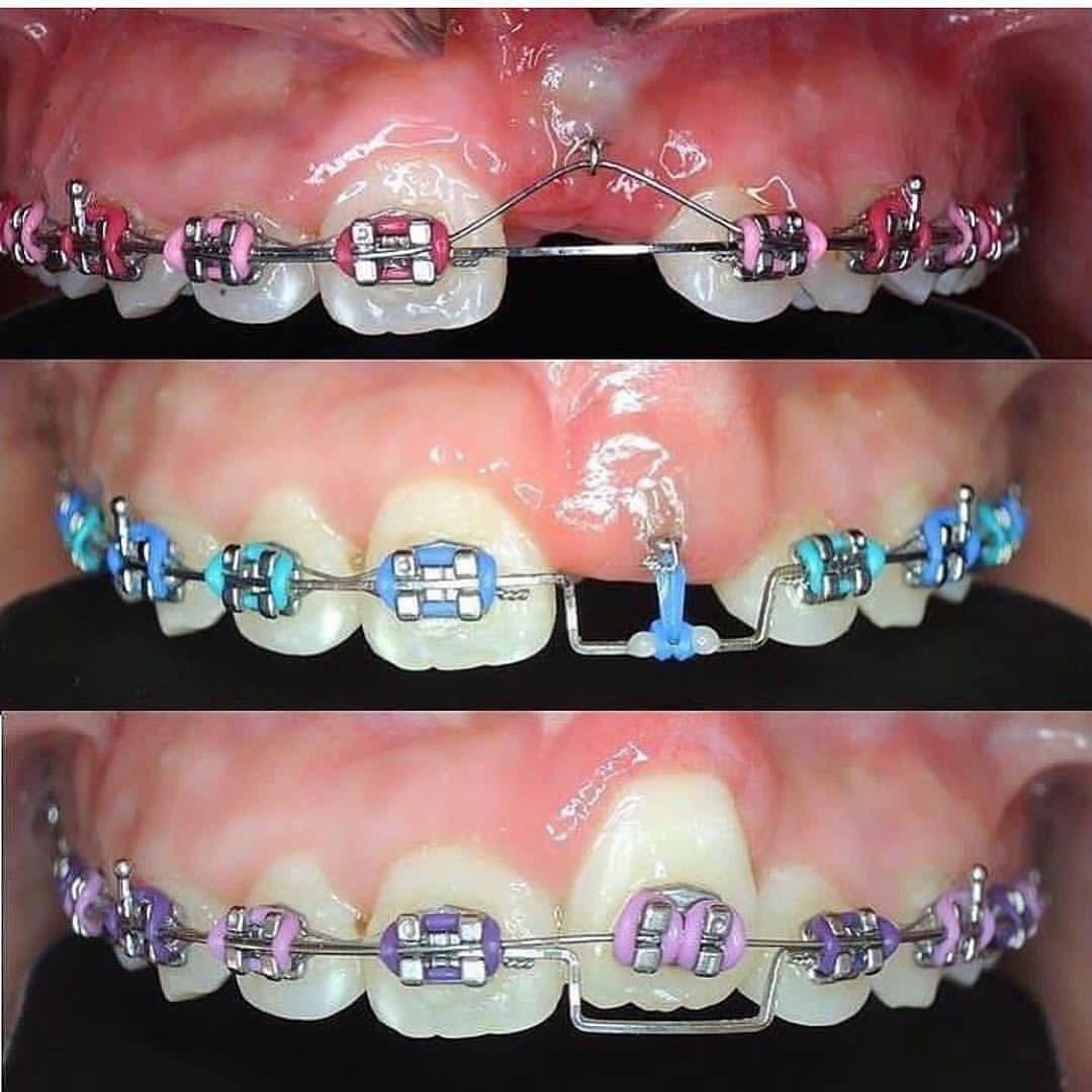 41 Ideas De Ortodoncia Ortodoncia Odontología Dental