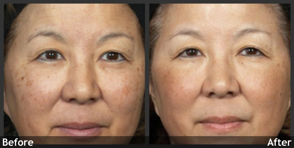 Ipl Asian Skin 42