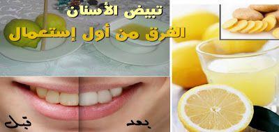 تبيض الأسنان وحل مشكل الإصفرار وصفة جديدة فعالة 2017