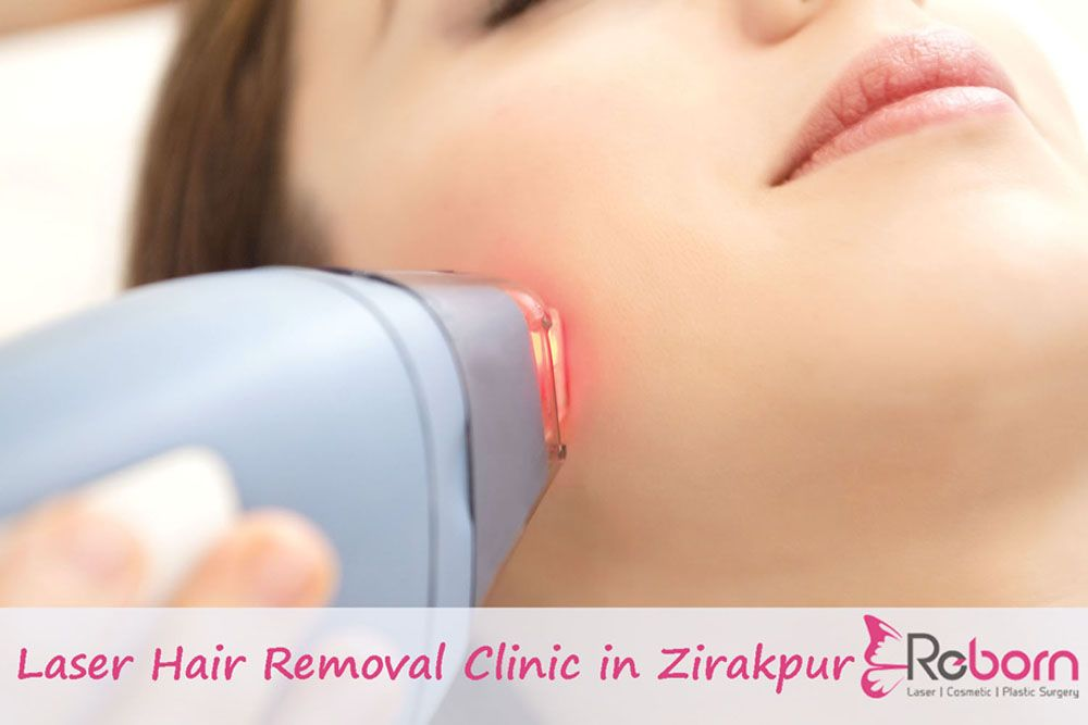 Pin By Clinic Reborn On Clinic Reborn Best Laser Hair Removal Hair Removal Laser Hair Removal