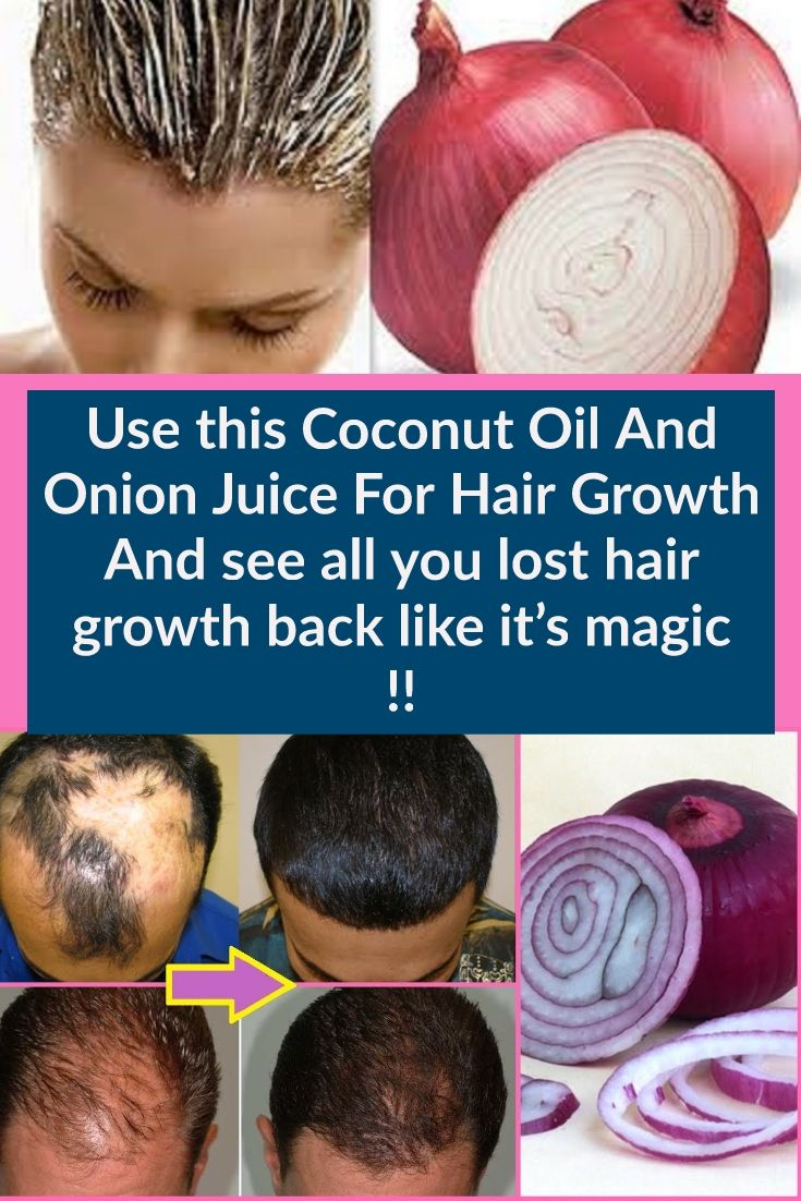 Pin On Home Remedy For Hair Care Hair Loss