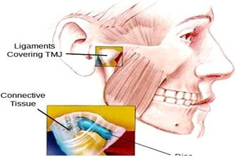 Tmj jaw diagram wiring diagram there are a few simple steps you can take at home or work to prevent rh ccuart Gallery
