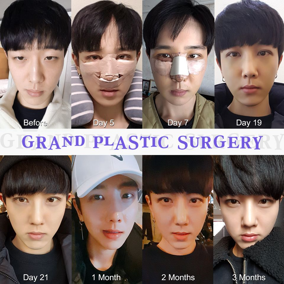 Make A Great Look Like An Idol Star Grand Is Here For You For Free Consultation Tel 82 Plastic Surgery Gone Wrong Plastic Surgery Fail Plastic Surgery