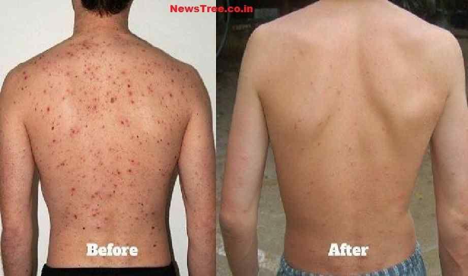 Bacne ways to get rid of 7 Ways