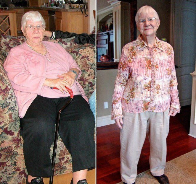 Lose weight from lower legs picture 2
