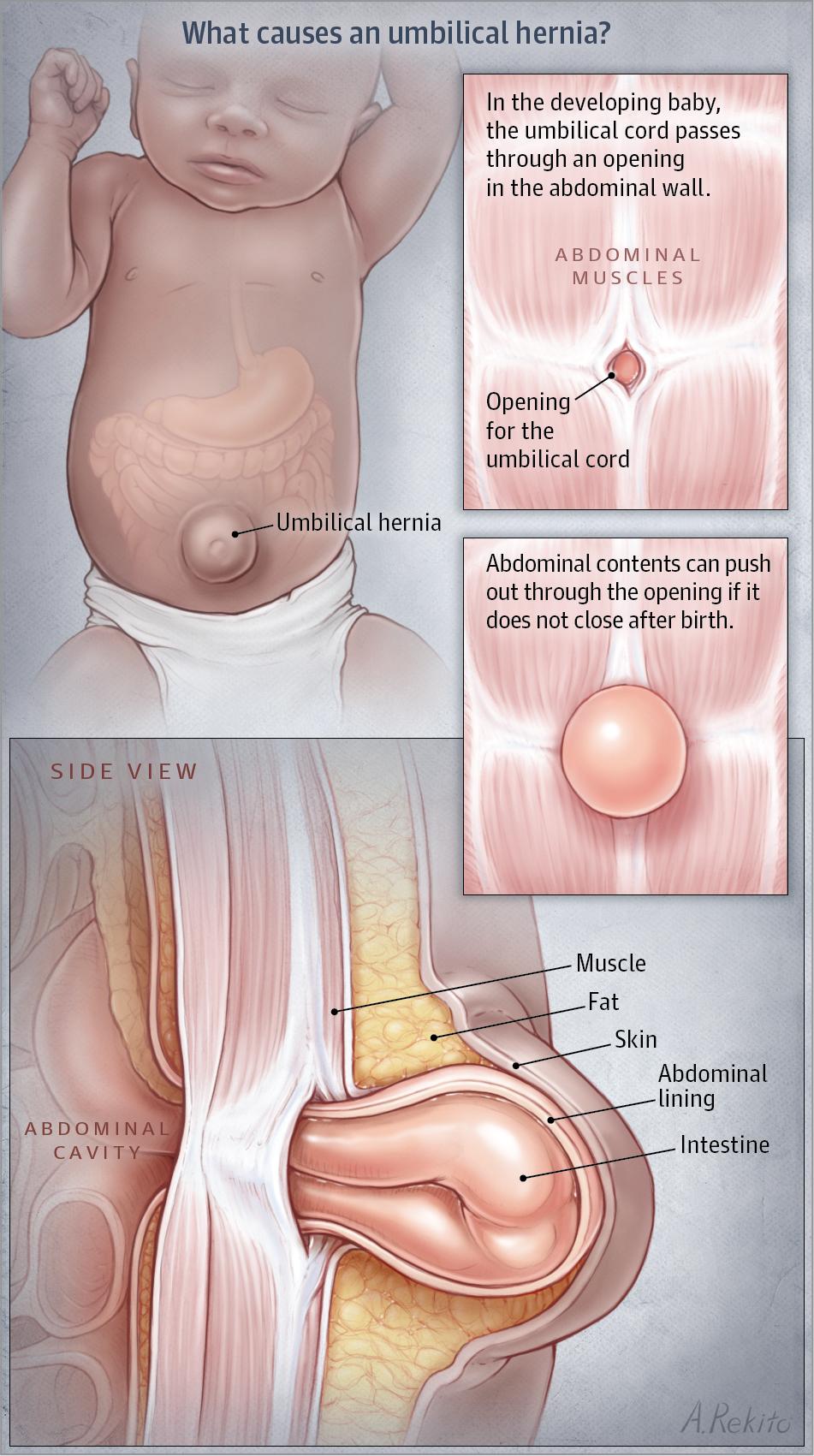 Umbilical Hernia JAMA  2017