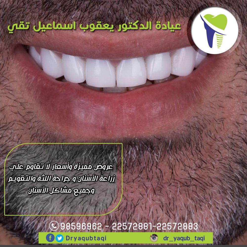 نمنحك اسنان جميلة قوية تجعل ابتسامتك ساحرة بسعر مغري يوجد تقسيط عن طريق بيت التمويل الكويتي عيادة دكتور يعقوب اسماعيل تقي 22572881 22572883 98596962 بنيد