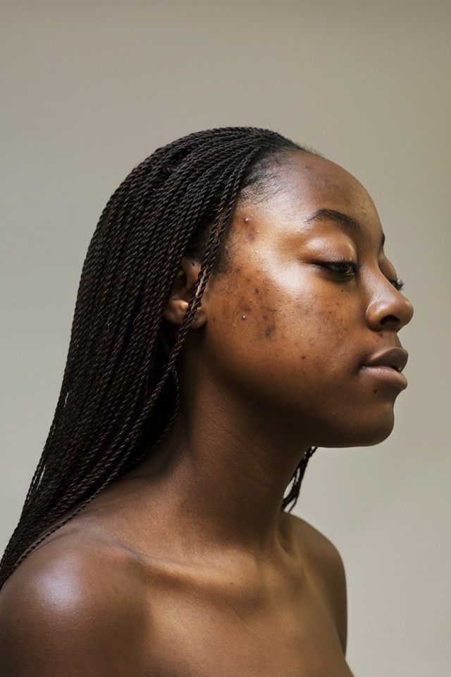 how one photographer's struggle with acne inspired her most vulnerable portrait series yet