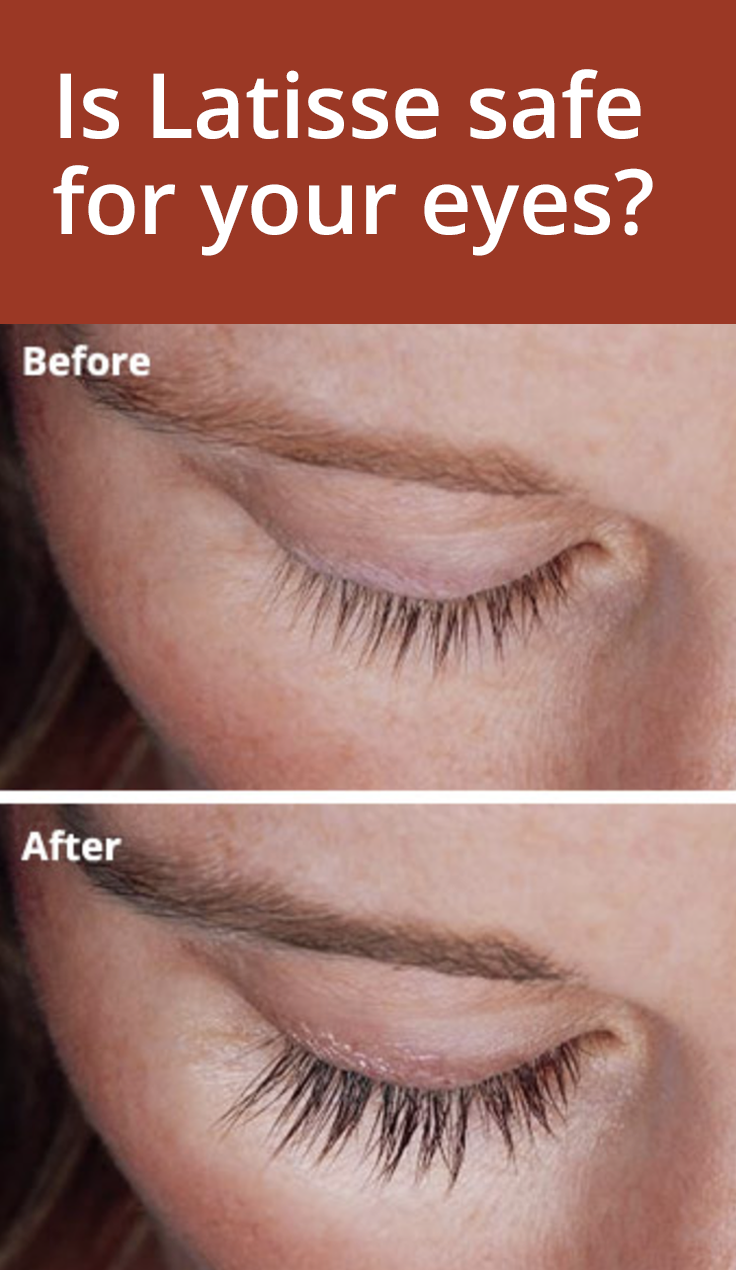 Latisse For Longer Eyelashes Is It Safe For Your Eyes Eye Health