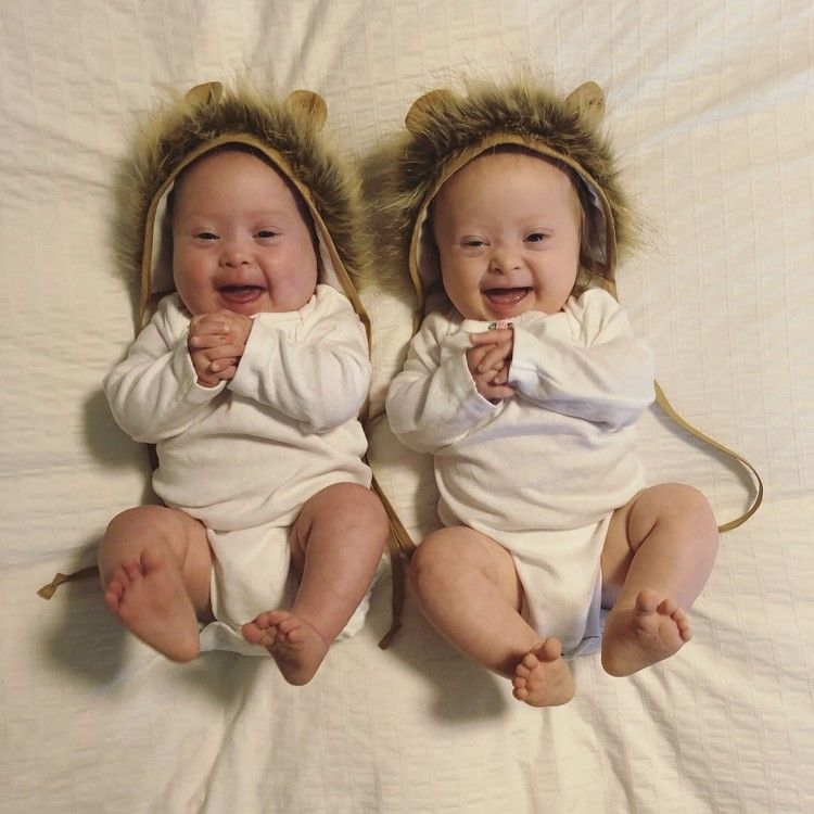 1 Mom Opened Up About Giving Birth To Twins With Down Syndrome And It S Powerful Popsugar With Images Down Syndrome Baby Down Syndrome Down Syndrome Kids