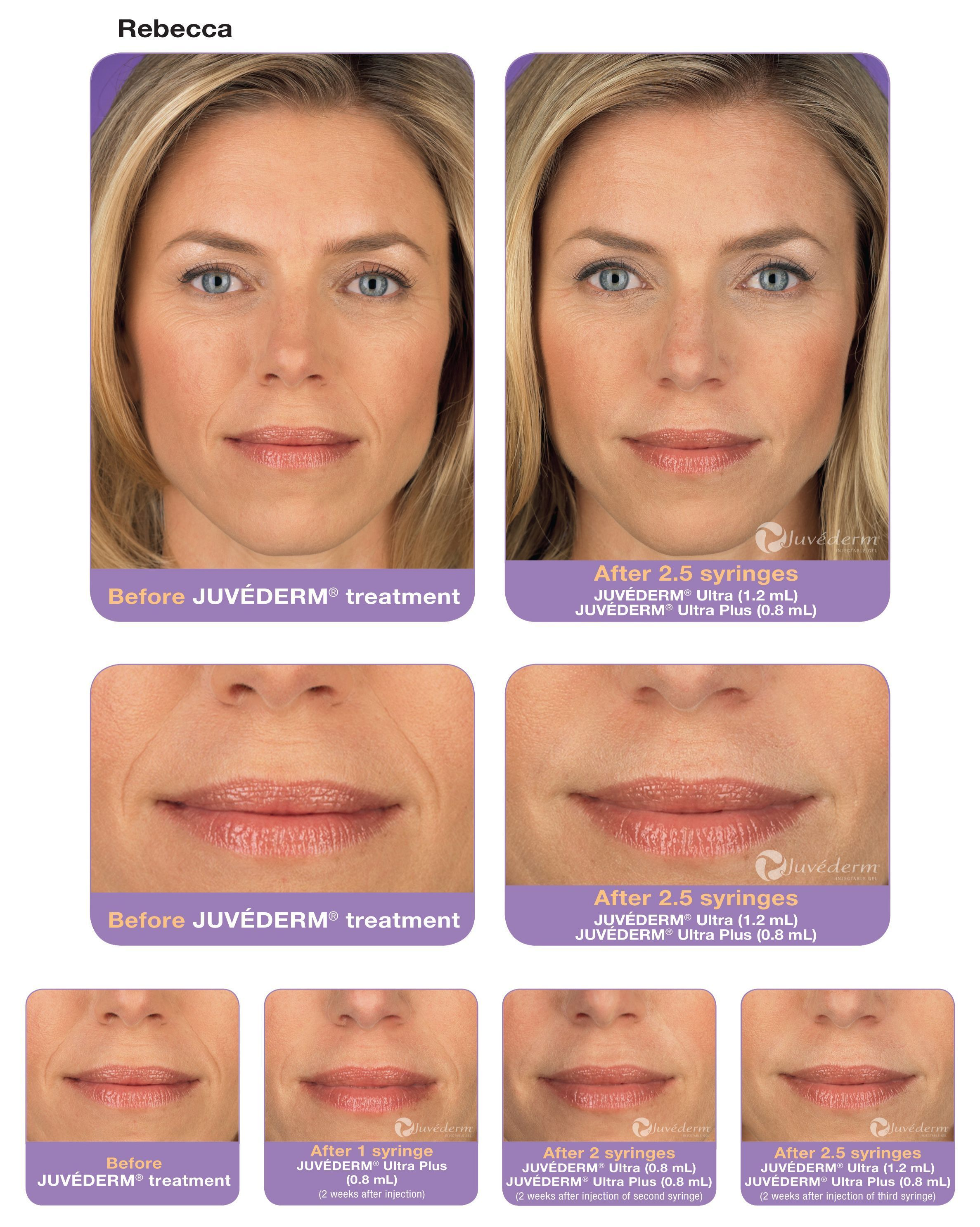 juvederm before and afters - Google Search #LipFillers1Ml