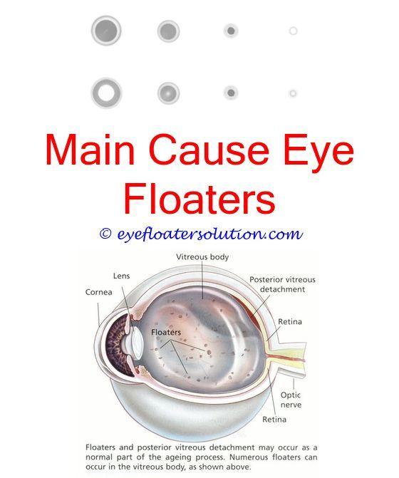 Cure Eye Strain Naturally