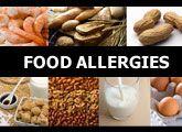Food Allergies in Children