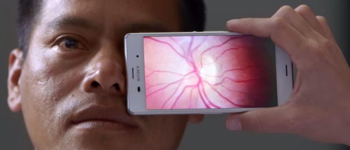 Le Peek Retina s'attache à la caméra des téléphones et permet aux physiciens d'examiner la rétine en utilisant la bonne intensité de lumière orientée selon le bon angle. Etant donné que le tout est combiné à un appareil photo, il produit des images de... #application #aveugle #cataractes #cécité #déficiencesvisuelles #déficientvisuel #développeurs #diabète #dlma #futurologie