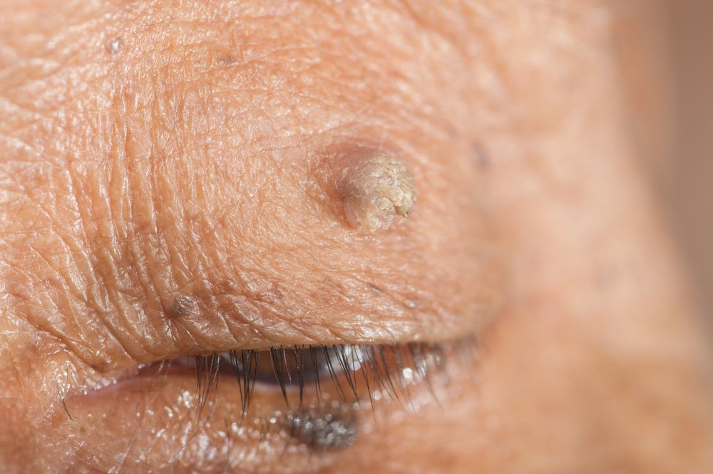 Quickly And Easily Remove Warts And Skin Tags With One Cheap
