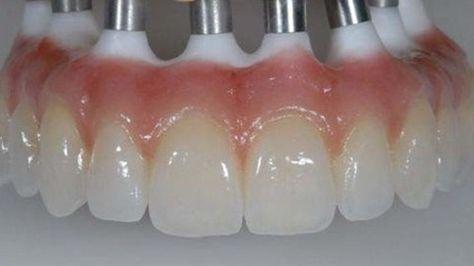 Pan Am Dental Lab Screw Retain Zirconia Bridge Description The Procedure For Making A Screw Retained Zirconia Bridge Is Dental Bridge Dental Cosmetics Dental