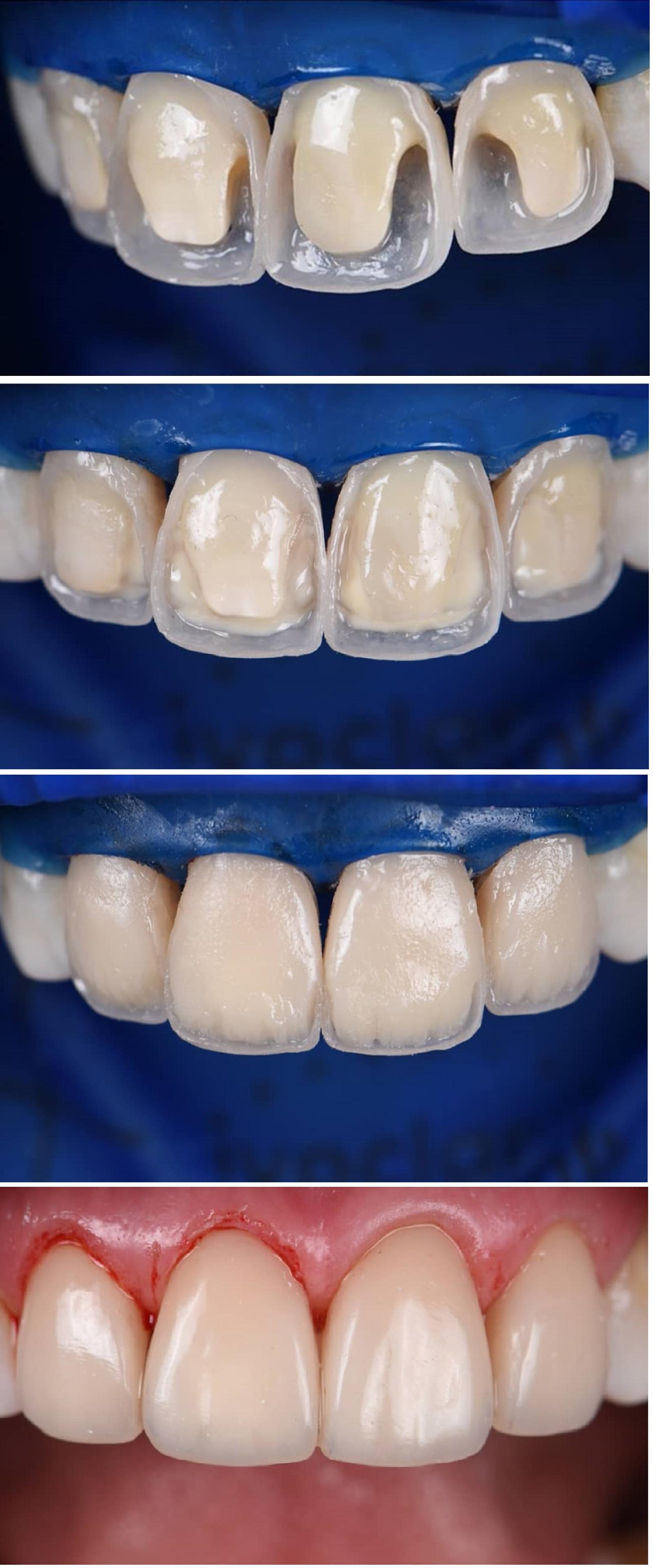 Aesthetic Composite Build Ups In The Anterior Region Cirugia Dental Caries Dental Estetica Dental