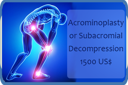 The Most Affordable Packages on Orthopedic surgery