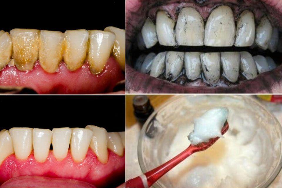 Tartaro dei denti: come rimuoverlo in modo naturale ed efficace