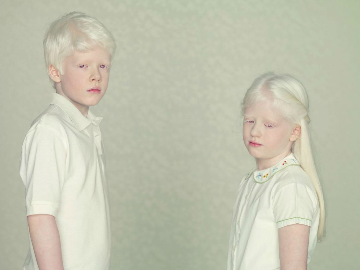 Indian Albino Albino Human Albinism Pale Beauty