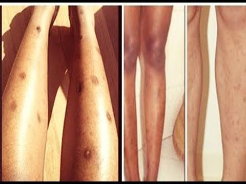 Pernas nas como marcas escuras remover
