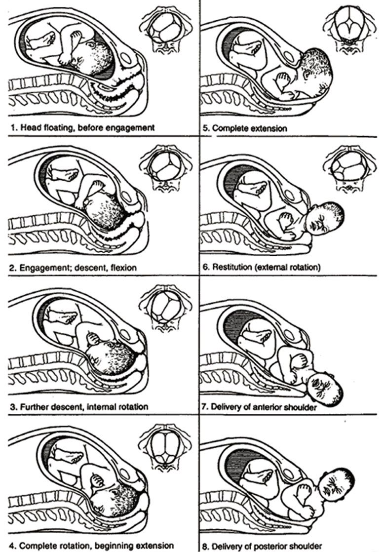 The starting position and the seven cardinal movements of the baby ...