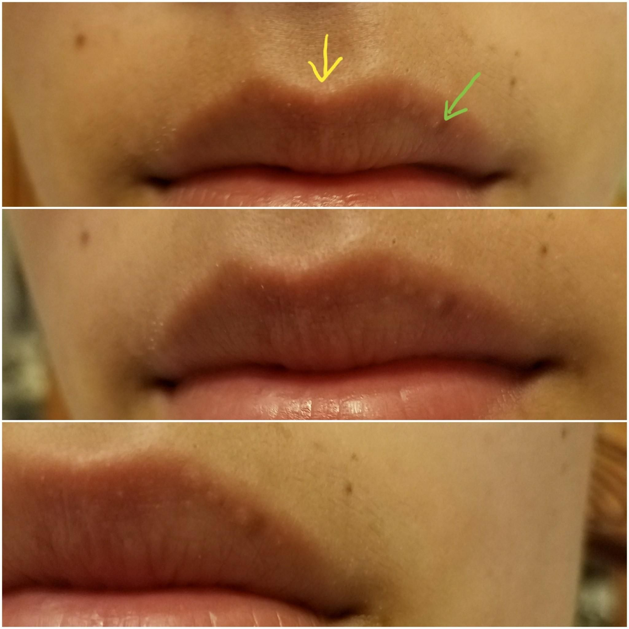 Skin Concerns Anyone Out There With Similar Bumps On Their Lips