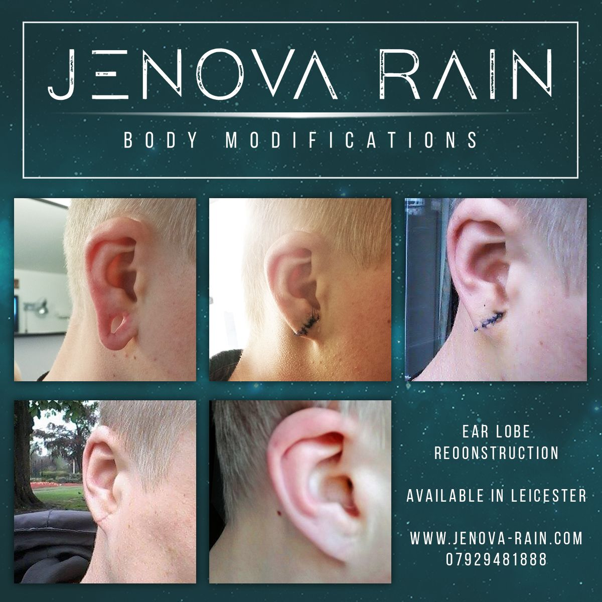 hight resolution of stretched ear lobes repaired stitched closed in leicester clinic uk healed after 2 weeks