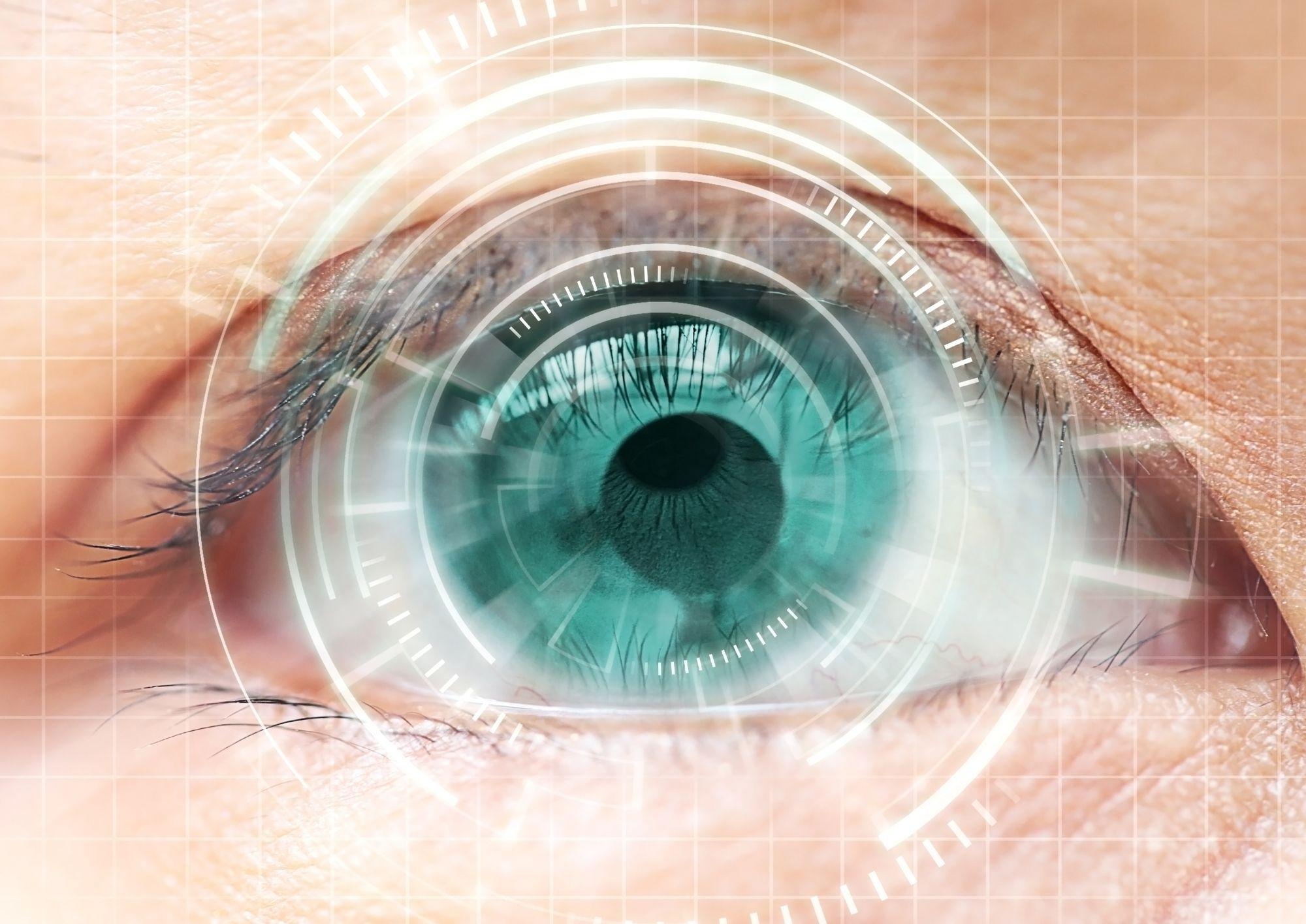 What is LASIK & Laser Eye Surgery? Eye surgery, Eye