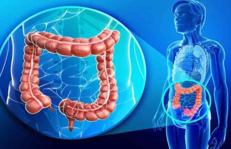 curatare intestine