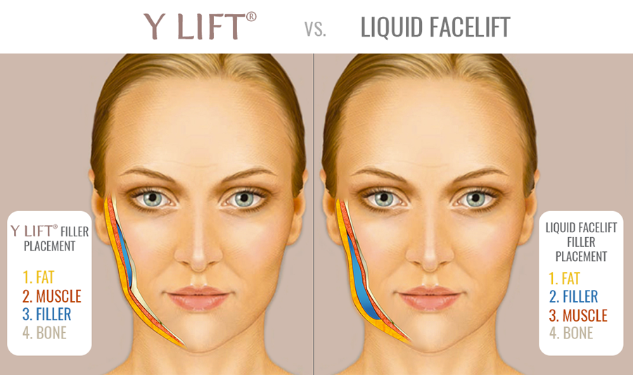 filler face lift