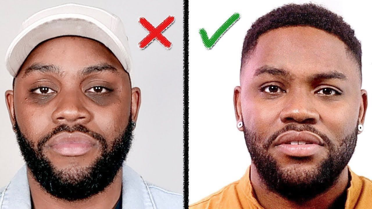 Remove DARK CIRCLES Under Your Eyes (How I Did It) Men's