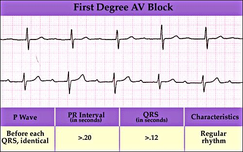 First Degree Av Block Description And Ecg Strip Example  Nursing