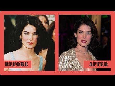 Lara Flynn Boyle Plastic Surgery - CelebrityPost.net #LaraFlynnBoyle