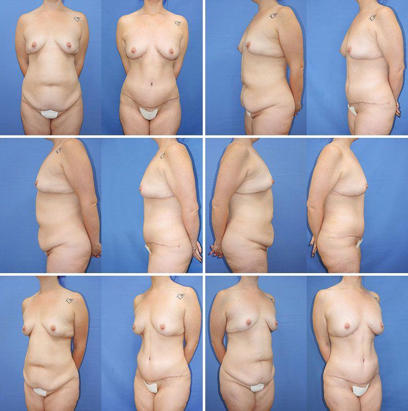 Breast augmentation and canada