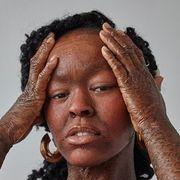 Atteinte d'une maladie cutanée rare, elle prend sa revanche sur la vie en devenant mannequin #verrinessalees