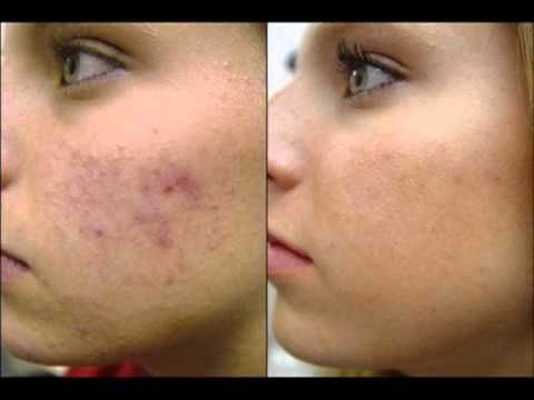 Youtube How To Get Rid Of Acne How To Get Rid Of Pimples Health And Beauty