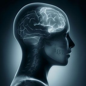 What causes frontal lobe headaches?